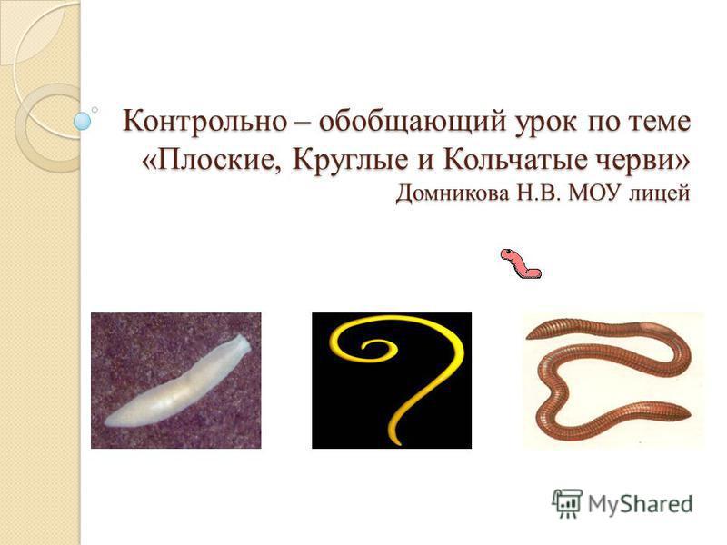 Контрольно – обобщающий урок по теме «Плоские, Круглые и Кольчатые черви» Домникова Н.В. МОУ лицей
