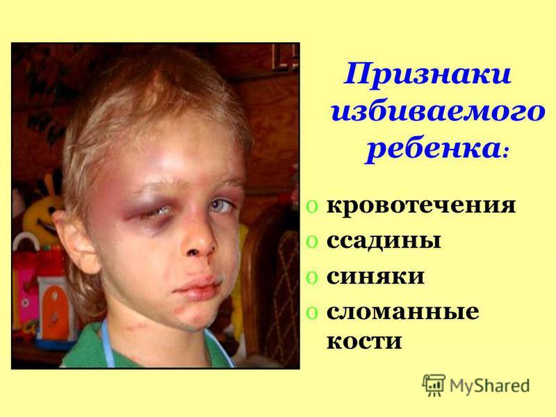 Признаки избиваемого ребенка : oкровотечения oссадины oсиняки oсломанные кости