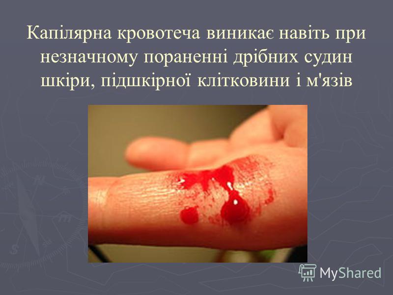 Капілярна кровотеча виникає навіть при незначному пораненні дрібних судин шкіри, підшкірної клітковини і м'язів