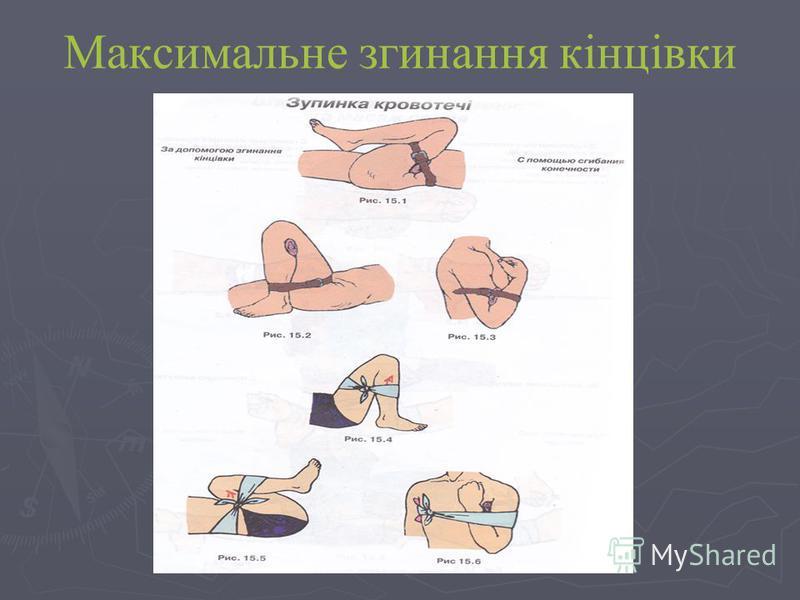 Максимальне згинання кінцівки