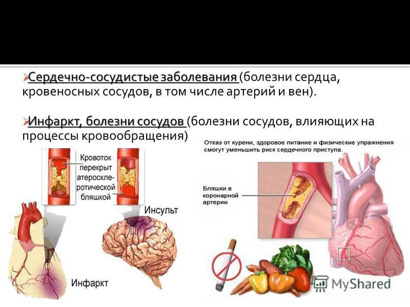 Сердечно-сосудистые заболевания Сердечно-сосудистые заболевания (болезни сердца, кровеносных сосудов, в том числе артерий и вен). Инфаркт, болезни сосудов Инфаркт, болезни сосудов (болезни сосудов, влияющих на процессы кровообращения)