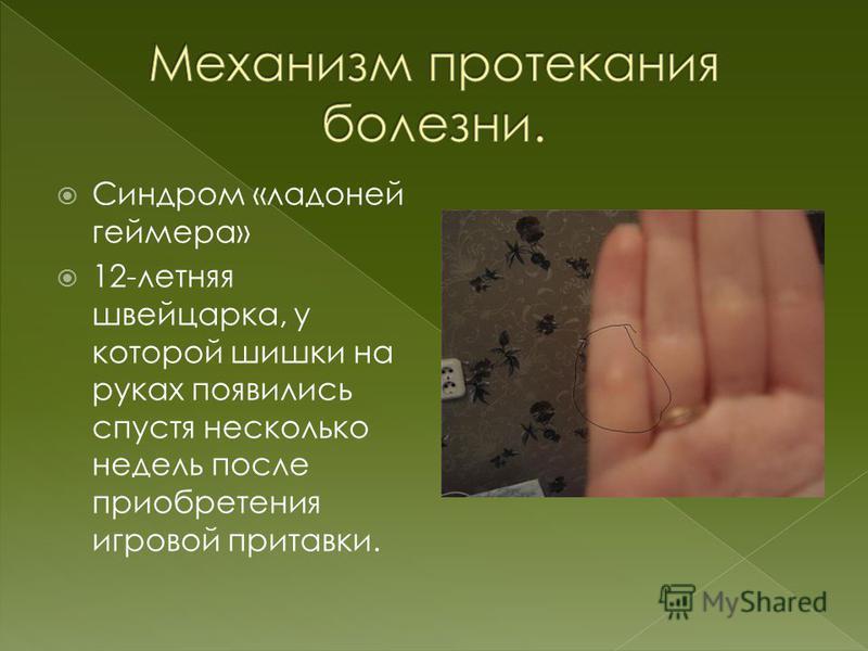 Синдром «ладоней геймера» 12-летняя швейцарка, у которой шишки на руках появились спустя несколько недель после приобретения игровой приставки.