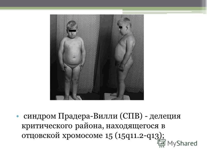 синдром Прадера-Вилли (СПВ) - делеция критического района, находящегося в отцовской хромосоме 15 (15q11.2-q13);