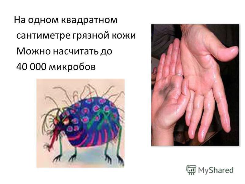 На одном квадратном сантиметре грязной кожи Можно насчитать до 40 000 микробов