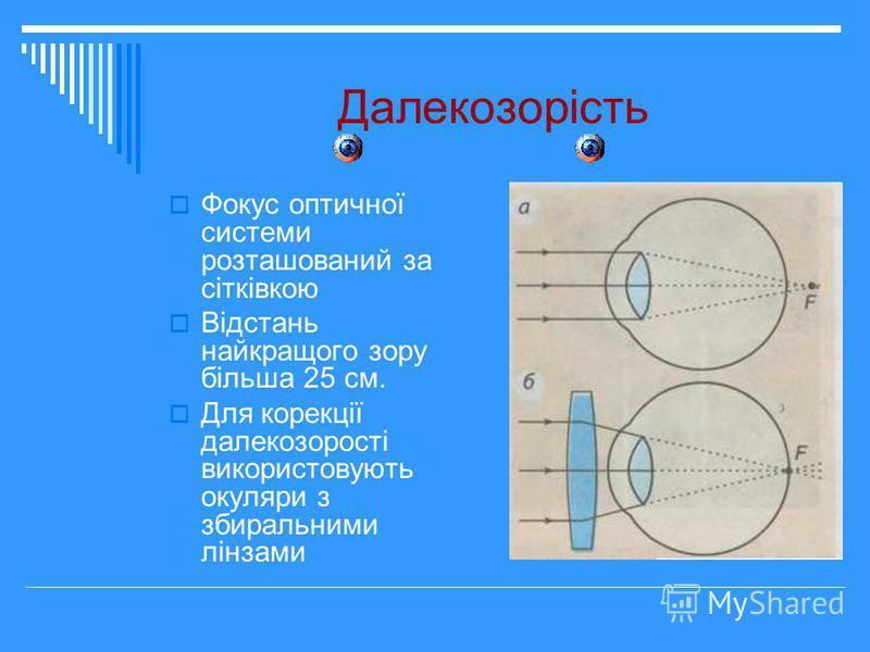 Далекозорість Фокус оптичної системи розташований за сітківкою Відстань найкращого зору більша 25 см. Для корекції далекозорості використовують окуляри з збиральними лінзами