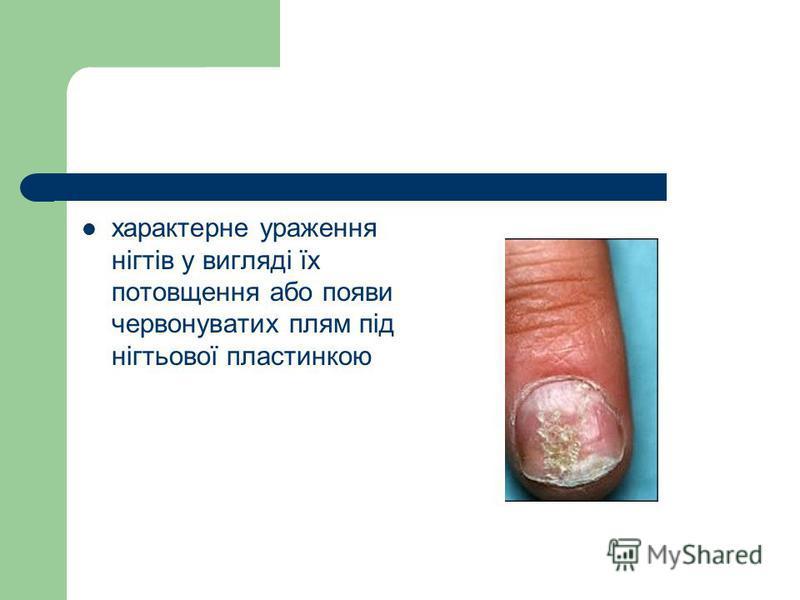 характерне ураження нігтів у вигляді їх потовщення або появи червонуватих плям під нігтьової пластинкою