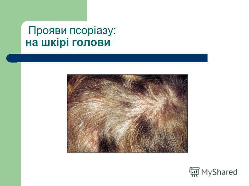 Прояви псоріазу: на шкірі голови