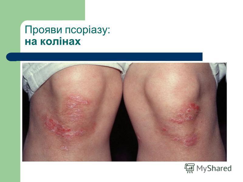 Прояви псоріазу: на колінах
