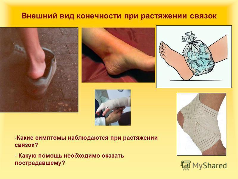 Внешний вид конечности при растяжении связок -Какие симптомы наблюдаются при растяжении связок? - Какую помощь необходимо оказать пострадавшему?