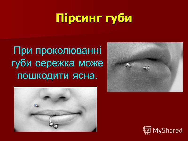 Пірсинг губи При проколюванні губи сережка може пошкодити ясна.