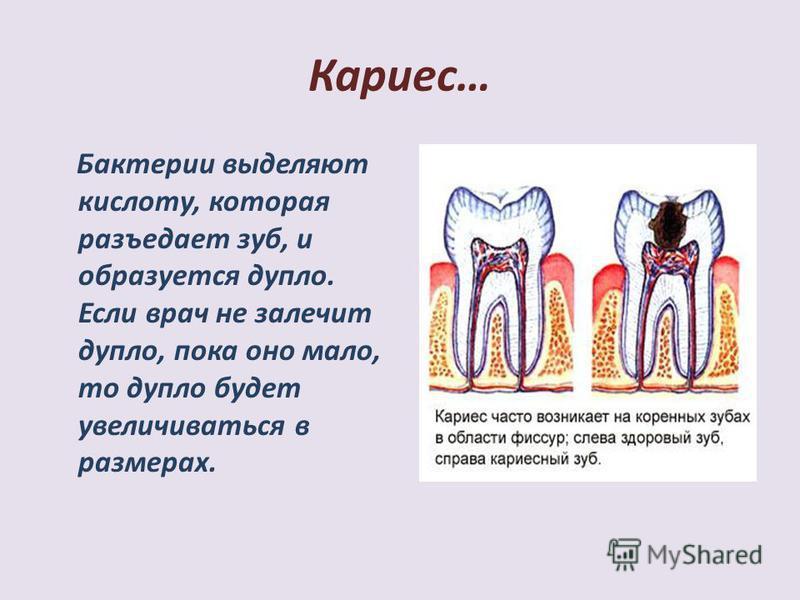 Кариес… Бактерии выделяют кислоту, которая разъедает зуб, и образуется дупло. Если врач не залечит дупло, пока оно мало, то дупло будет увеличиваться в размерах.