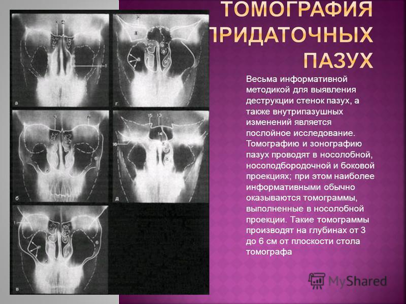 Весьма информативной методикой для выявления деструкции стенок пазух, а также внутрипазушных изменений является послойное исследование. Томографию и зонографию пазух проводят в носолобной, носоподбородочной и боковой проекциях; при этом наиболее инфо