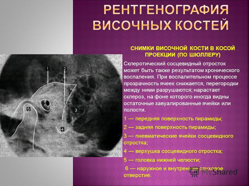 СНИМКИ ВИСОЧНОЙ КОСТИ В КОСОЙ ПРОЕКЦИИ (ПО ШЮЛЛЕРУ) Склеротический сосцевидный отросток может быть также результатом хронического воспаления. При воспалительном процессе прозрачность ячеек снижается, перегородки между ними разрушаются; нарастает скле