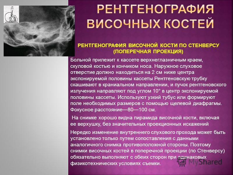 РЕНТГЕНОГРАФИЯ ВИСОЧНОЙ КОСТИ ПО СТЕНВЕРСУ (ПОПЕРЕЧНАЯ ПРОЕКЦИЯ) Больной прилежит к кассете верхнеглазничным краем, скуловой костью и кончиком носа. Наружное слуховое отверстие должно находиться на 2 см ниже центра экспонируемой половины кассеты Рент
