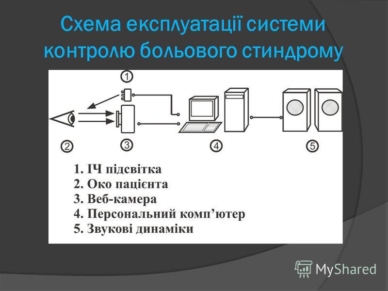 Cхема експлуатації системи контролю больового стиндрому