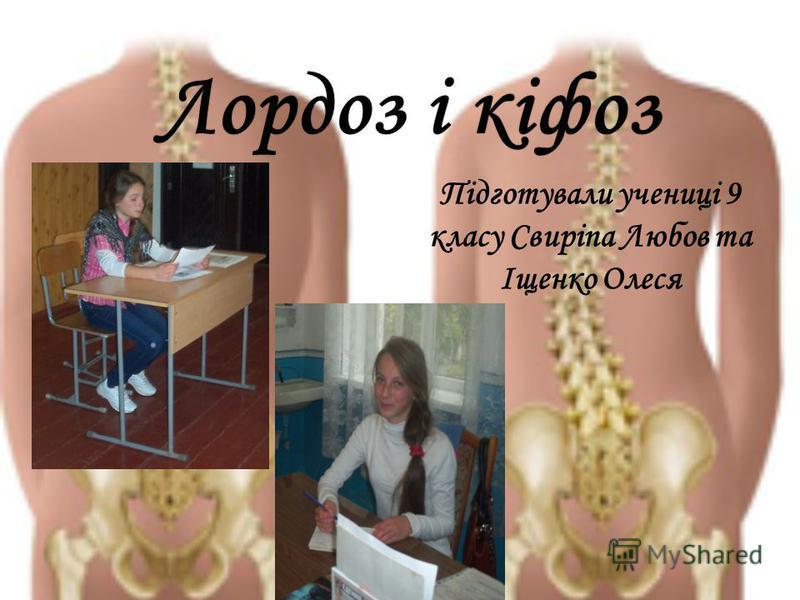 Лордоз і кіфозЛордоз і кіфоз Підготували учениці 9 класу Свиріпа Любов та Іщенко Олеся