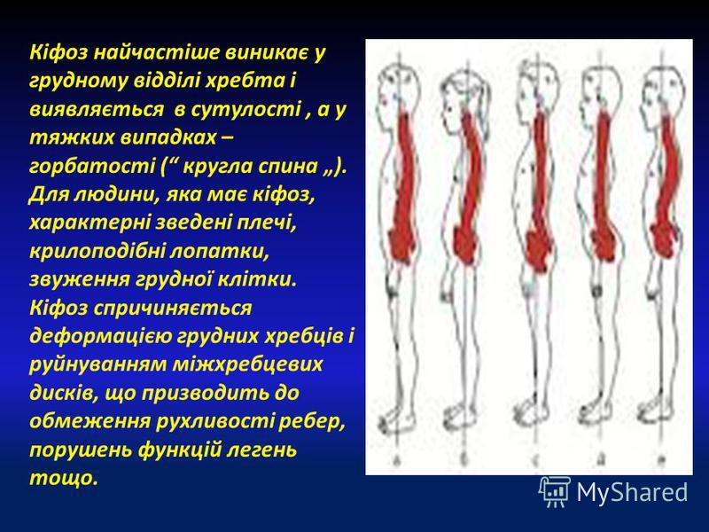 Кіфоз найчастіше виникає у грудному відділі хребта і виявляється в сутулості, а у тяжких випадках – горбатості ( кругла спина ). Для людини, яка має кіфоз, характерні зведені плечі, крилоподібні лопатки, звуження грудної клітки. Кіфоз спричиняється д