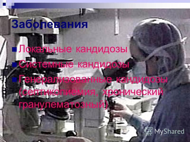 Заболевания Локальные кандидозы Системные кандидозы Генерализованные кандидозы (септикопиемия, хронический гранулематозный)