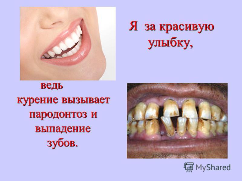 Я за красивую Я за красивую улыбку, улыбку, ведь ведь курение вызывает пародонтоз и пародонтоз и выпадение выпадение зубов. зубов.