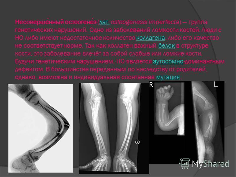 Несовершенный остеогенез (лат. osteogenesis imperfecta) группа генетических нарушений. Одно из заболеваний ломкости костей. Люди с НО либо имеют недостаточное количество коллагена, либо его качество не соответствует норме. Так как коллаген важный бел