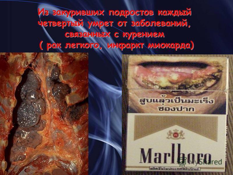 Из закуривших подростов каждый четвертый умрет от заболеваний, связанных с курением ( рак легкого, инфаркт миокарда)
