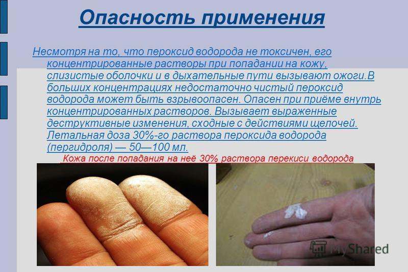 Попадание на кожу нитробензола