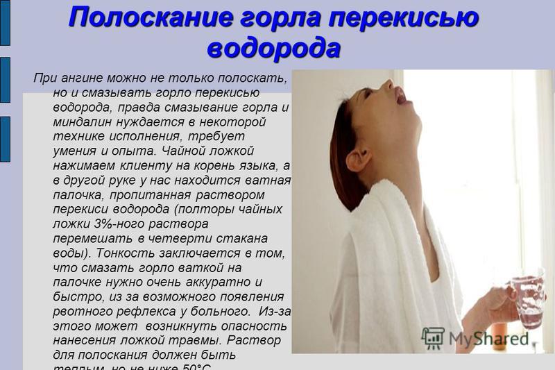 Полоскать горло перекисью водорода рецепт