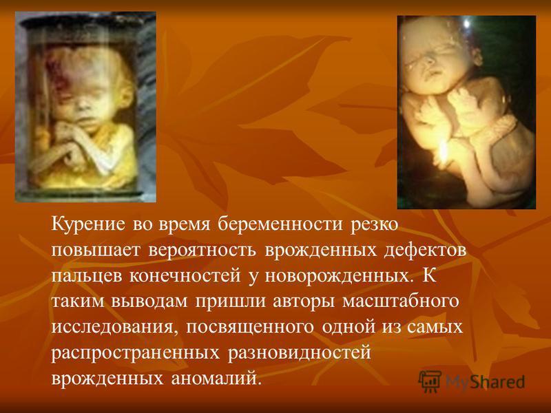 Курение во время беременности резко повышает вероятность врожденных дефектов пальцев конечностей у новорожденных. К таким выводам пришли авторы масштабного исследования, посвященного одной из самых распространенных разновидностей врожденных аномалий.