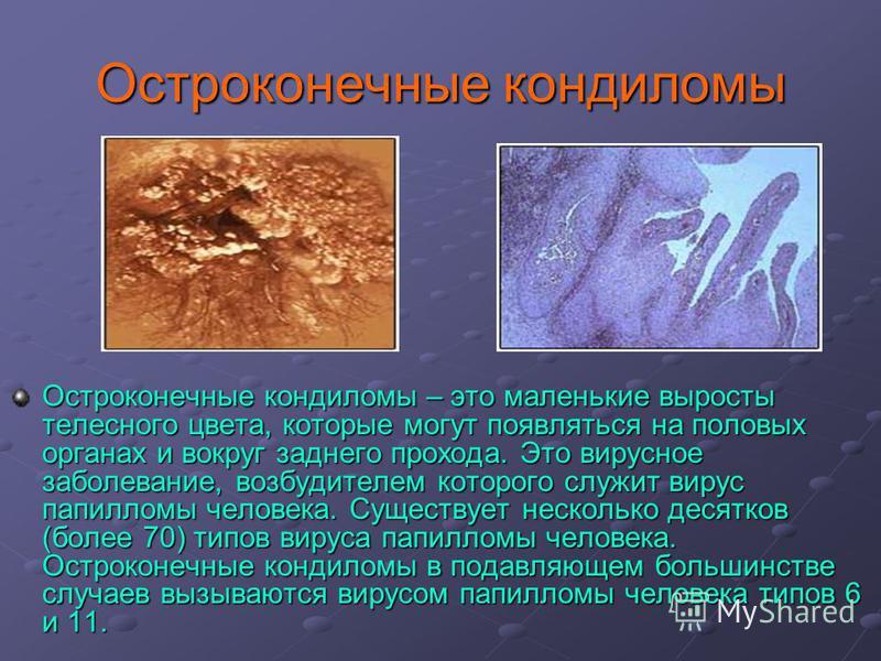 Остроконечные кондиломы Остроконечные кондиломы – это маленькие выросты телесного цвета, которые могут появляться на половых органах и вокруг заднего прохода. Это вирусное заболевание, возбудителем которого служит вирус папилломы человека. Существует