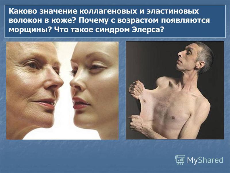 Каково значение коллагеновых и эластиновых волокон в коже? Почему с возрастом появляются морщины? Что такое синдром Элерса?