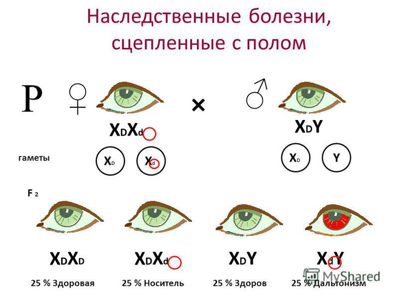 Наследственные болезни, сцепленные с полом Р × XDXDXDXD XDXdXDXd XDXdXDXd XdYXdYXDYXDY XDYXDY гаметы XDXD XdXd XDXD Y F 2 25 % Здоровая 25 % Носитель 25 % Здоров 25 % Дальтонизм