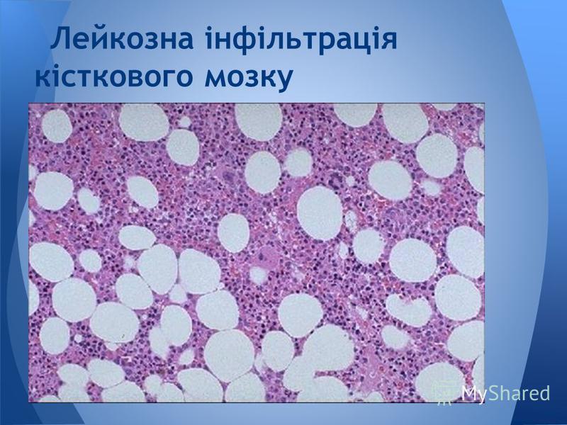 Лейкозна інфільтрація кісткового мозку