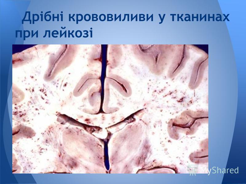 Дрібні крововиливи у тканинах при лейкозі