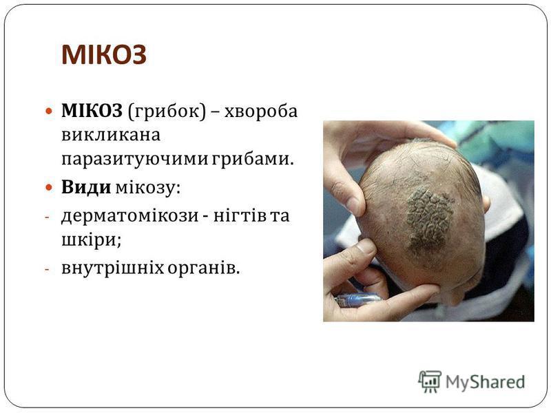 МІКОЗ МІКОЗ ( грибок ) – хвороба викликана паразитуючими грибами. Види мікозу : - дерматомікози - нігтів та шкіри ; - внутрішніх органів.