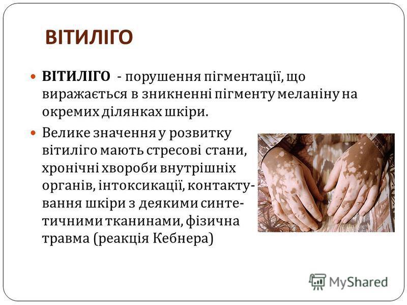 ВІТИЛІГО ВІТИЛІГО - порушення пігментації, що виражається в зникненні пігменту меланіну на окремих ділянках шкіри. Велике значення у розвитку вітиліго мають стресові стани, хронічні хвороби внутрішніх органів, інтоксикації, контакту - вання шкіри з д