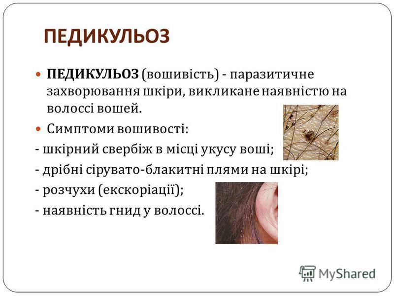 ПЕДИКУЛЬОЗ ПЕДИКУЛЬОЗ ( вошивість ) - паразитичне захворювання шкіри, викликане наявністю на волоссі вошей. Симптоми вошивості : - шкірний свербіж в місці укусу воші ; - дрібні сірувато - блакитні плями на шкірі ; - розчухи ( екскоріації ); - наявніс