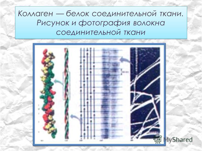 Коллаген белок соединительной ткани. Рисунок и фотография волокна соединительной ткани