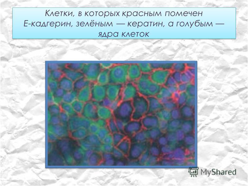 Клетки, в которых красным помечен Е-кадгерин, зелёным кератин, а голубым ядра клеток