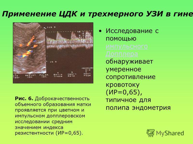 пример очага повышенной эхогенности внутри эндометрия. Рис. 5. Васкуляризированный полип эндометрия при трансвагинальном цветном допплеровском исследовании. Применение ЦДК и трехмерного УЗИ в гинекологии