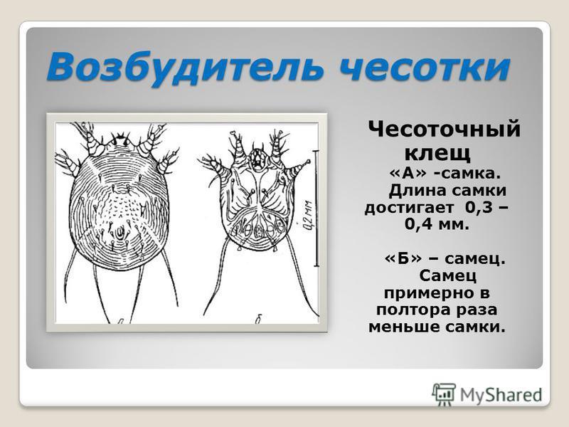 Возбудитель чесотки Чесоточный клещ «А» -самка. Длина самки достигает 0,3 – 0,4 мм. «Б» – самец. Самец примерно в полтора раза меньше самки.