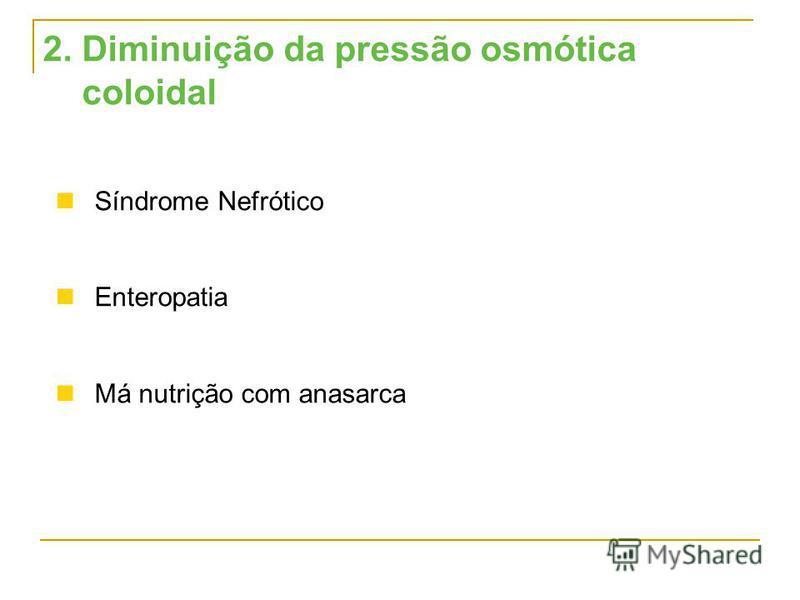 2. Diminuição da pressão osmótica coloidal Síndrome Nefrótico Enteropatia Má nutrição com anasarca