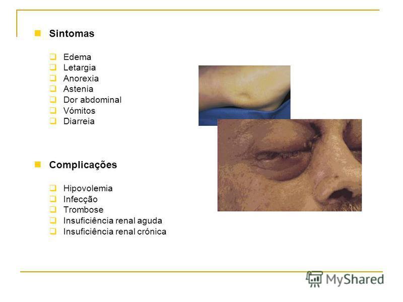 Sintomas Edema Letargia Anorexia Astenia Dor abdominal Vómitos Diarreia Complicações Hipovolemia Infecção Trombose Insuficiência renal aguda Insuficiência renal crónica