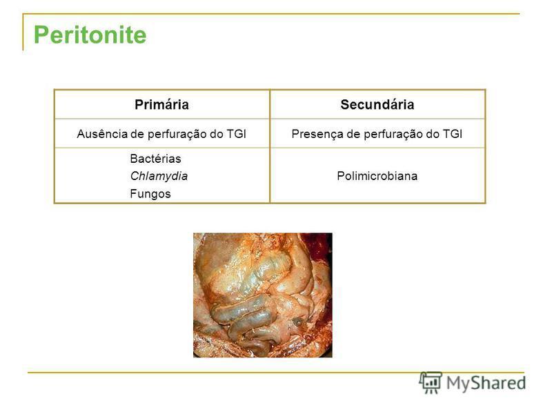 Peritonite PrimáriaSecundária Ausência de perfuração do TGIPresença de perfuração do TGI Bactérias Chlamydia Fungos Polimicrobiana