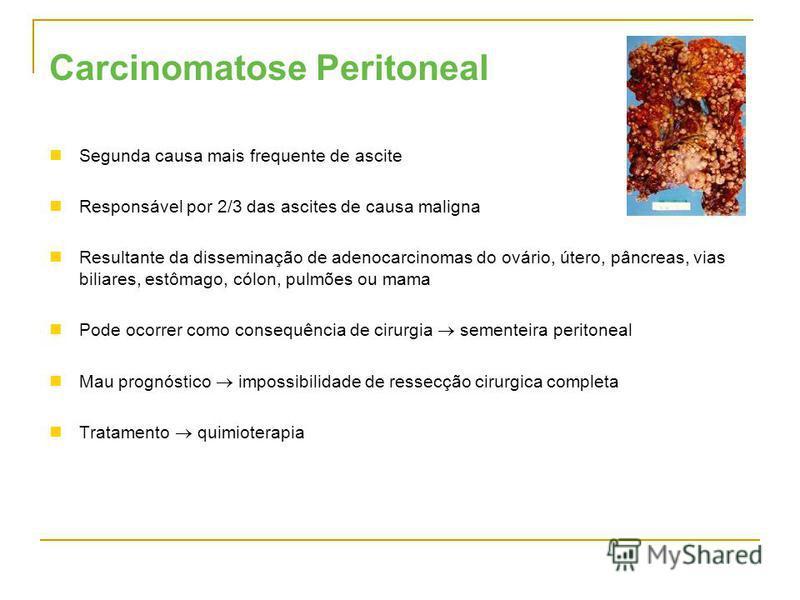Carcinomatose Peritoneal Segunda causa mais frequente de ascite Responsável por 2/3 das ascites de causa maligna Resultante da disseminação de adenocarcinomas do ovário, útero, pâncreas, vias biliares, estômago, cólon, pulmões ou mama Pode ocorrer co