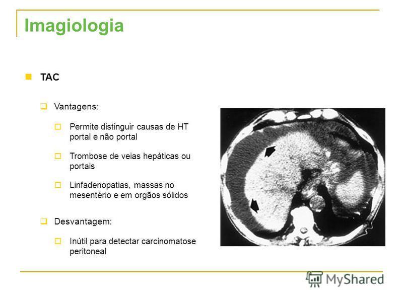 TAC Vantagens: Permite distinguir causas de HT portal e não portal Trombose de veias hepáticas ou portais Linfadenopatias, massas no mesentério e em orgãos sólidos Desvantagem: Inútil para detectar carcinomatose peritoneal Imagiologia