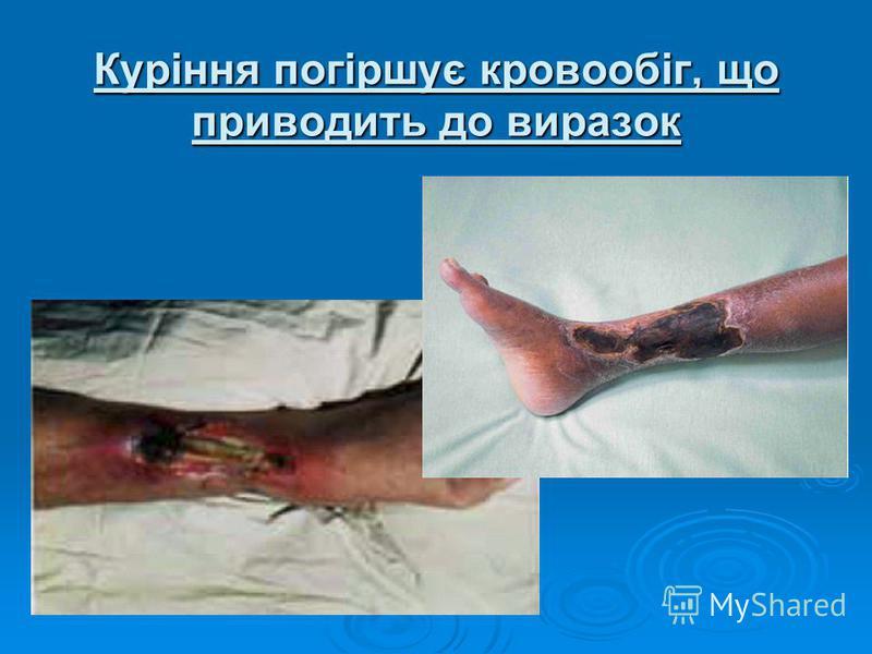 Куріння погіршує кровообіг, що приводить до виразок