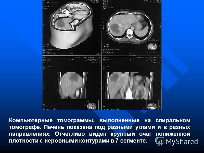 Компьютерные томограммы, выполненные на спиральном томографе. Печень показана под разными углами и в разных направлениях. Отчетливо виден крупный очаг пониженной плотности с неровными контурами в 7 сегменте.