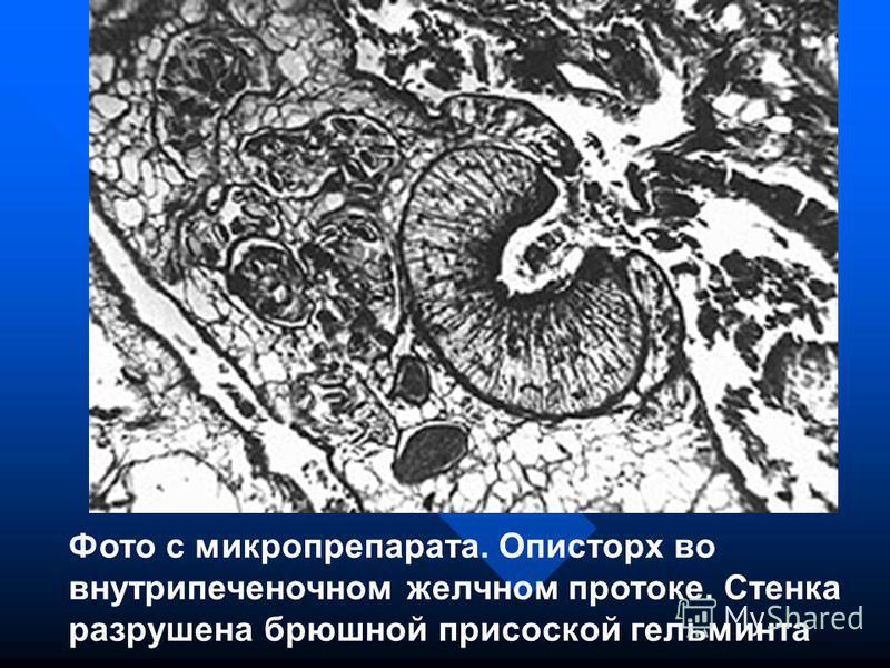 Фото с микропрепарата. Описторх во внутрипеченочном желчном протоке. Стенка разрушена брюшной присоской гельминта