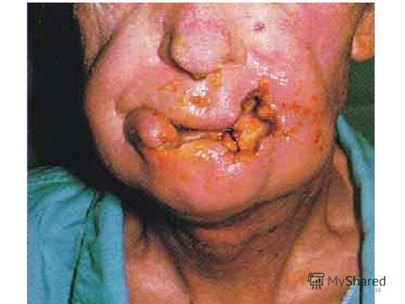 . DİĞER Erkek ve kadınlarda kısırlık Kadınlarda erken menopoz Prematüre Doğum / Düşük Cildin erken yaşlanması Katarakt Tat ve koku alma duyularında zayıflama 33