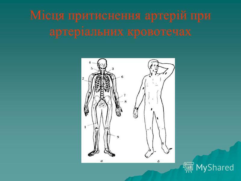 Місця притиснення артерій при артеріальних кровотечах